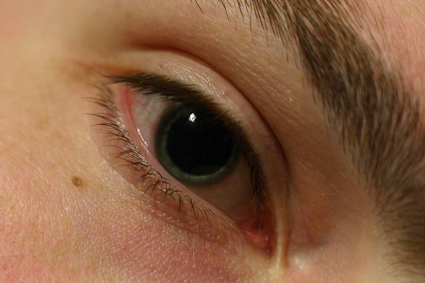 Как меняется внешность метамфетаминового наркомана